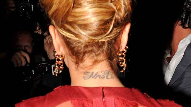 Shows for Cheryl cole tattoo removal