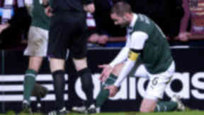 Hibernian captain James McPake shows his injuries to the referee after a bad tackle by Hearts' Ryan Stevenson.