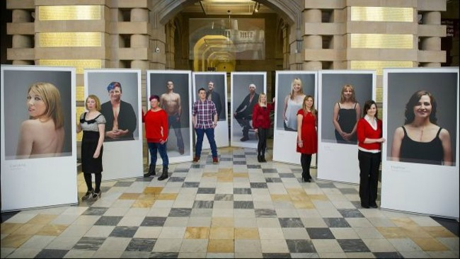 Exhibition Displays Glasgow : Scarred for life exhibition on display at golden jubilee
